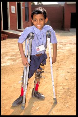 Polio India NewDehli Amar Jyoti Charitable Trust Amar Jyoti Rehabilitation & Research Centre Karkar Dooma November 2002 Copyright WHO/P.Virot