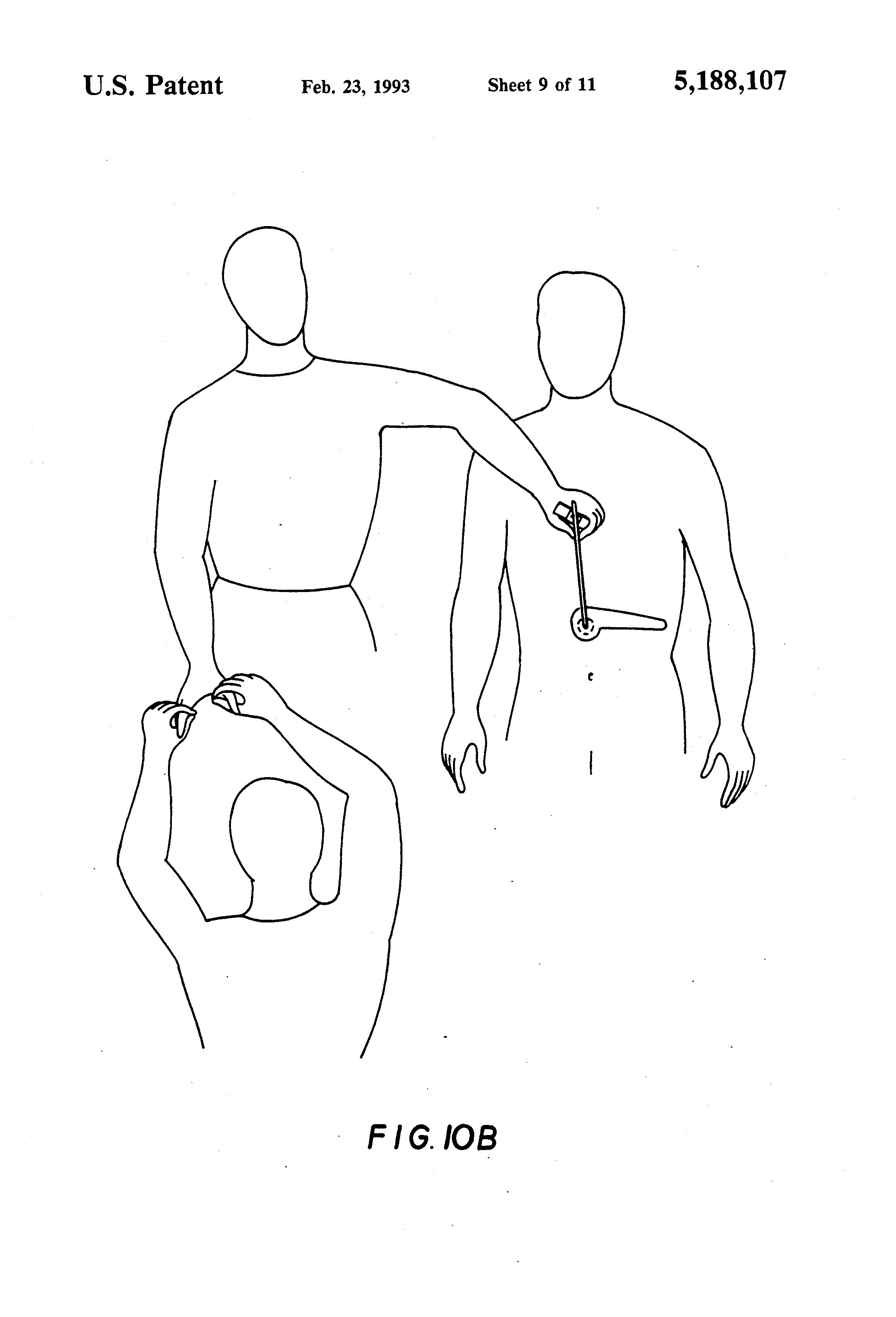 """Dibujos ilustrativos del """"método diagnóstico"""" patentado."""